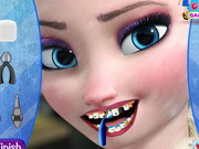 Play Elsa Dentist Appointment game